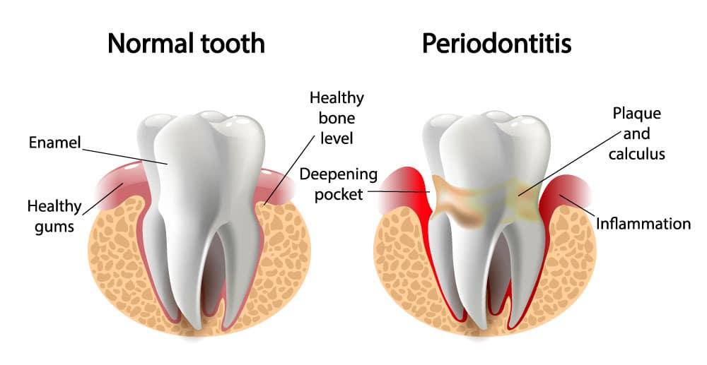 Periodontal Dentistry in BestSmiles Dentist office in West Hartford CT